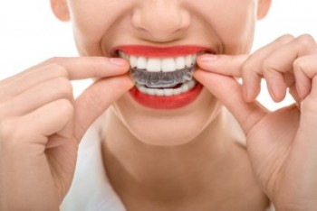 cleaning invisalign