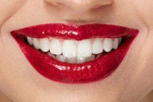 porcelain-veneers-red-bank-dentist-1