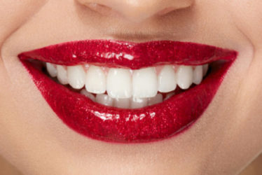porcelain-veneers-red-bank-dentist-1