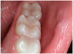 kathy w with new white fillings